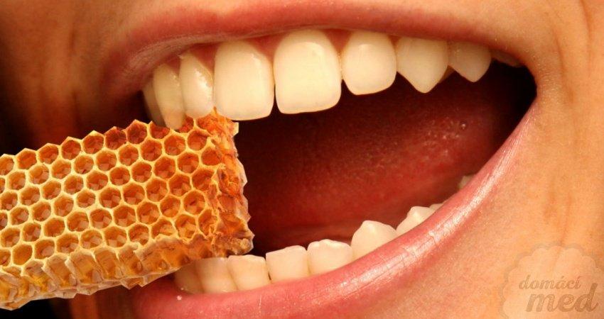 Propolis a parodontóza