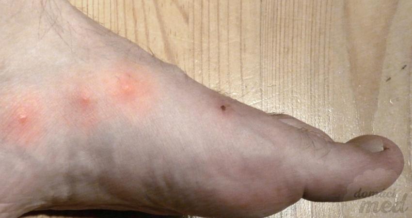 bradavice na noze